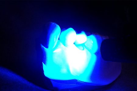 Exposing Low-Cost Dental Curing Lights