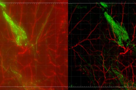 Imaging Intracellular pH in Living Cells